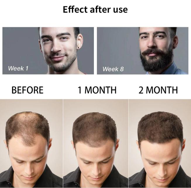 Men's Beard Growth Kit